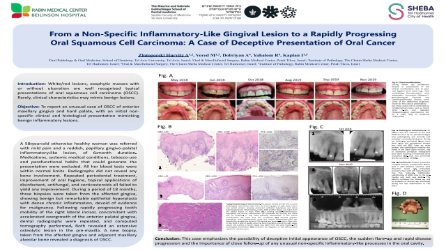 102:From a Non-Specific Inflammatory-Like Gingival Lesion to a Rapidly Progressing Oral Squamous Cell Carcinoma: A Case of Deceptive Presentation of Oral Cancer[AAOM2021]