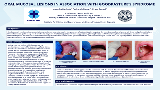 123: Oral Mucosal Lesions In Association With Goodpasture´s Syndrome