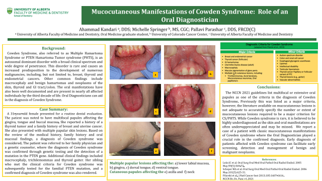 133: Mucocutaneous Manifestations of Cowden Syndrome: Role of an Oral Diagnostician{AAOM2021}
