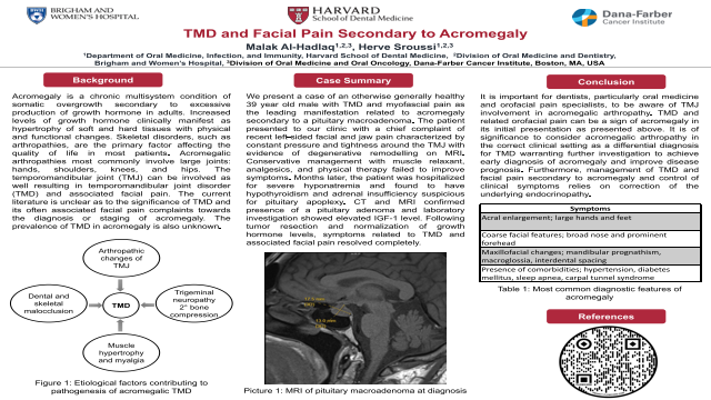152:TMD and Facial Pain Secondary to Acromegaly{AAOM2021}