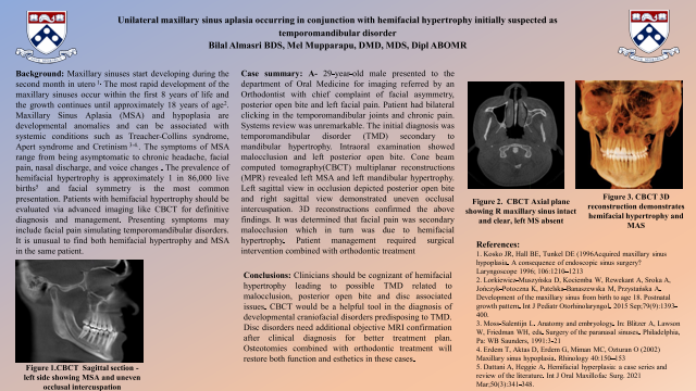 172:Unilateral Maxillary Sinus Aplasia Occurring in Conjunction with Hemifacial Hypertrophy Initially Suspected as Temporomandibular Disorder.[AAOM2021]