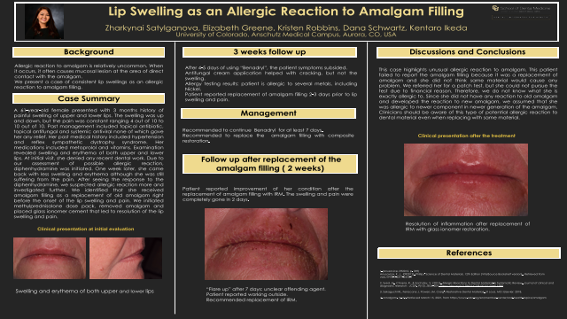 205:Lip Swelling as an Allergic Reaction to Amalgam Filling[AAOM2020}