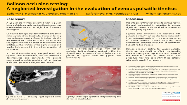 ePosters - Balloon occlusion testing: A neglected technique in the