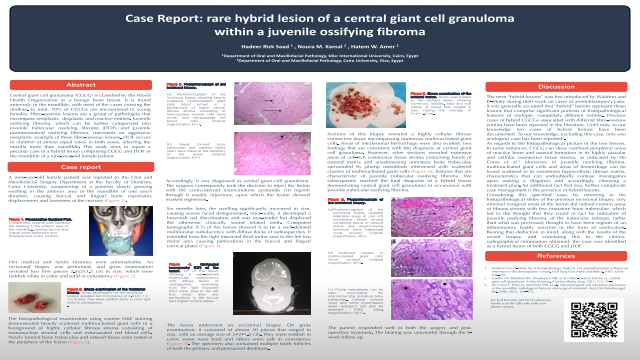Case Report: rare hybrid lesion of a central giant cell granuloma within a juvenile ossifying fibroma