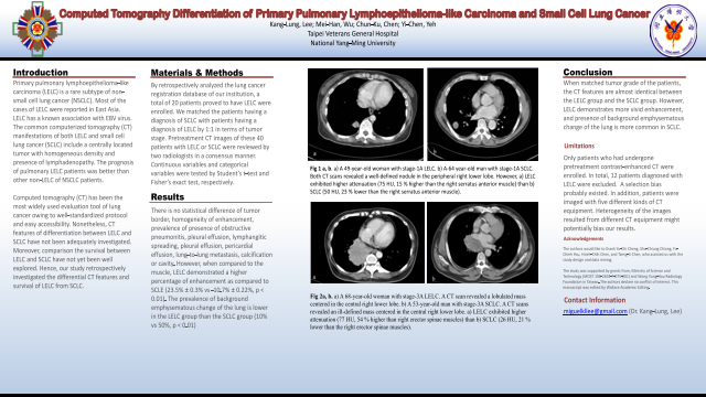 computed tomography differentiation of primary pulmonary lymphoepithelioma-like carcinoma and small cell lung cancer