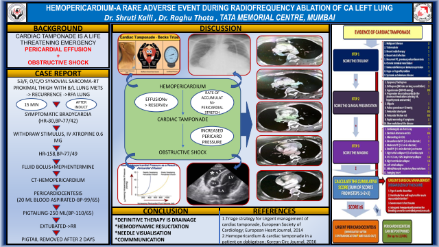 Hemopericardium-A Rare Adverse Event of Radiofrequency Ablation of Lung
