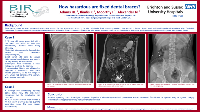 How hazardous are fixed dental braces?