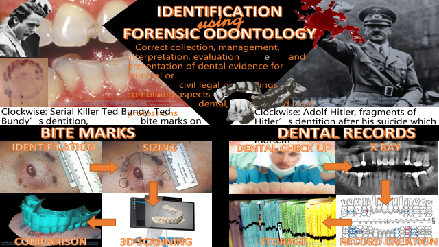 Identification using Forensic Odontology