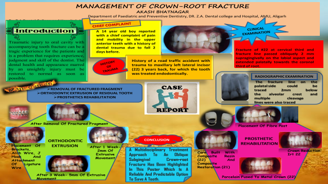 ePosters - MANAGEMENT OF CROWN-ROOT FRACTURE