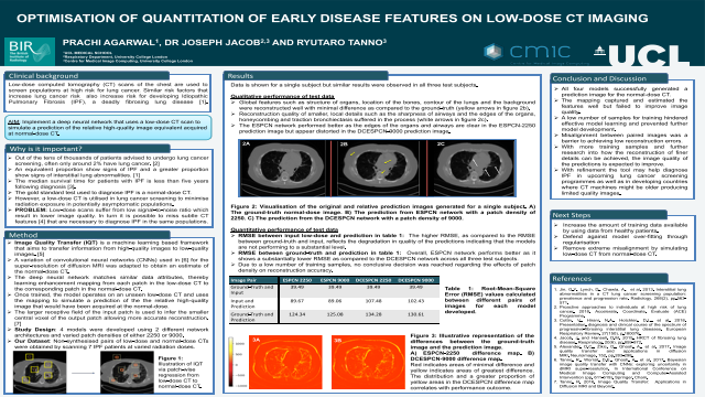 Optimisation of Quantitation of Early Disease Features on Low-Dose CT Imaging