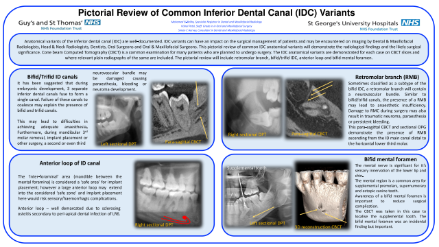 Pictorial Review of Common Inferior Dental Canal (IDC) Variants