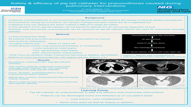 Safety & efficacy of pig tail catheter for pneumothorax caused during pulmonary interventions