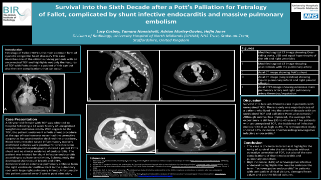 Survival into the Sixth Decade after a Pott's Palliation for Tetralogy of Fallot, complicated by shunt infective endocarditis and massive pulmonary embolism