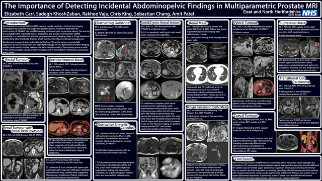 The Importance of Detecting Incidental Abdominopelvic Findings in Multiparametric Prostate MRI