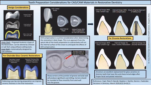 Tooth Preparation Considerations for CAD/CAM Materials in Restorative Dentistry