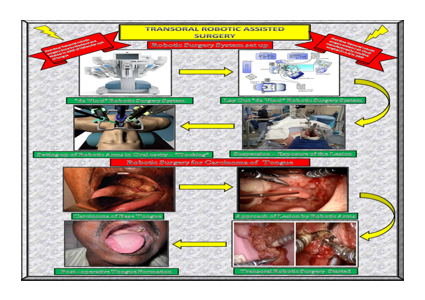 Trans oral robotic assisted surgery