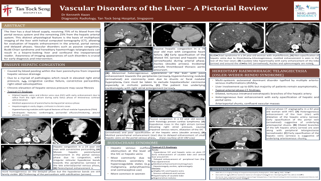Vascular Disorders of the Liver - A Pictorial Review